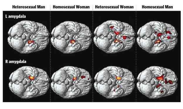 man brain Gay